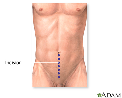Transurethral Resection Of The Prostate Multimedia Encyclopedia