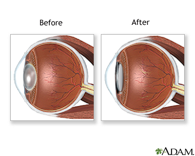 Cataract Removal Multimedia Encyclopedia Health Information St