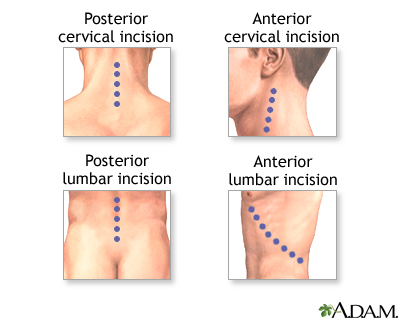 Spinal fusion   Multimedia Encyclopedia   Health Information