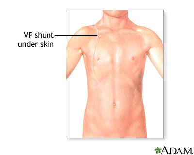 ventriculoperitoneal shunting | multimedia encyclopedia | health, Skeleton