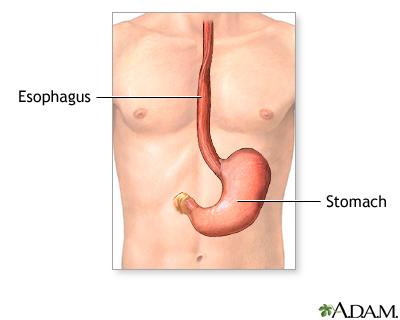 food tube diagram feeding tube insertion gastrostomy multimedia encyclopedia  feeding tube insertion gastrostomy