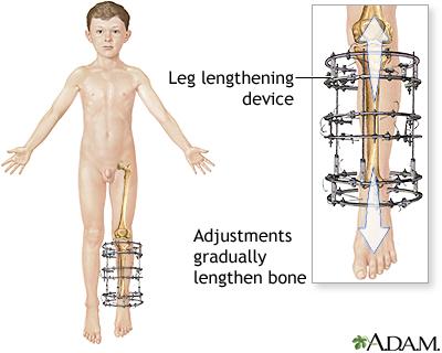 leg lengthening  shortening multimedia encyclopedia