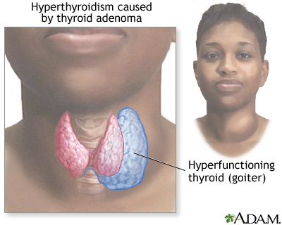 Hyperthyroidism Multimedia Encyclopedia Health Information