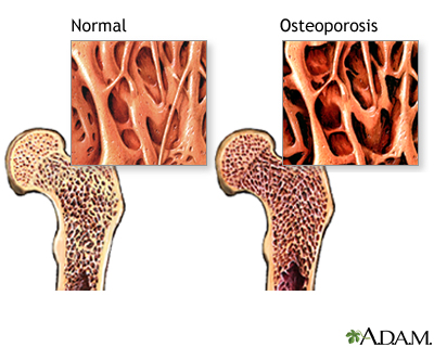 Once yearly shot osteoporosis