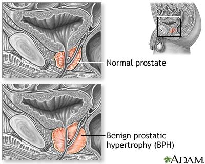 Prostate cancer | In-Depth Reports | St. Luke\'s Hospital