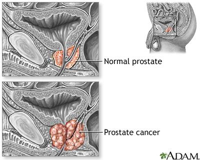 prostate cancer symptoms ncbi