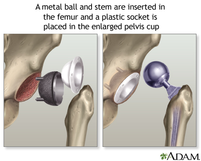 Hip Joint Replacement Series Multimedia Encyclopedia