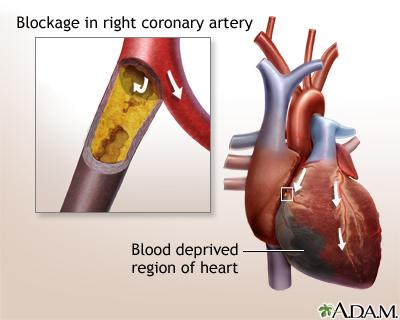 Heart bypass surgery | Multimedia Encyclopedia | Health ...