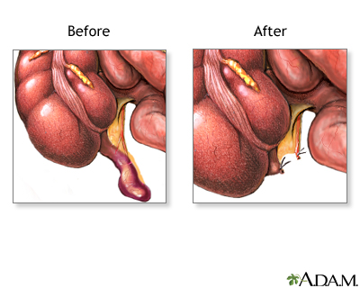 Food to Eat & Avoid After Appendix Surgery on Your Body