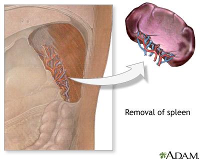 spleen removal, Human Body