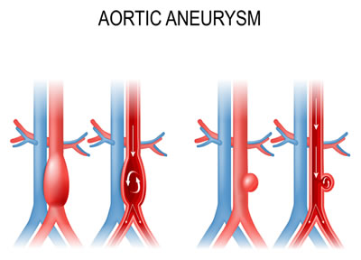 Illustrations of typical abdominal aorta and of aortic aneurysm