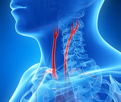 Visual of carotid arteries inside the human neck
