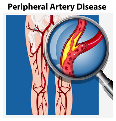Peripheral artery disease in legs illustration